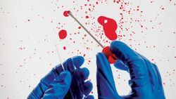 Forensic Proteomics: A Ground-Floor Opportunity