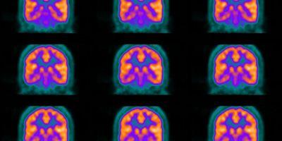 PET-Based Technique Aids Better Live Visualization