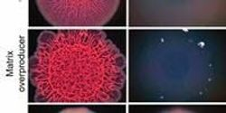 Researchers Find a Way to Peel Slimy Biofilms like Old Stickers