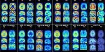Promising Diagnostic Tool Identified for Alzheimer's Disease