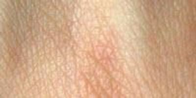 Researchers Use Burn Victims' Own Cells to Regrow Skin up to 30 Percent Quicker