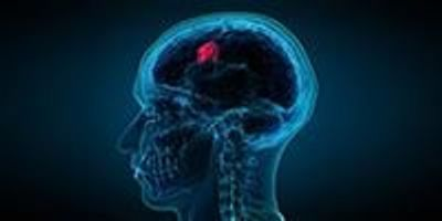 Study Shows Potential to Develop Brain Tumor Liquid Biopsies