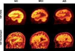 Amyloid Is a Less Accurate Marker for Measuring Severity, Progression of Alzheimer's