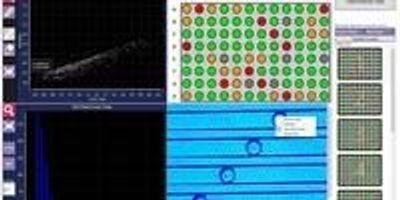 Sphere Fluidics Introduces New Cyto-Mine Studio Software Suite