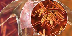 Study Maps Genetics of Early Progression in TB