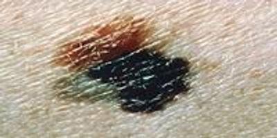 Scientists Test New Cancer Vaccine Against Melanoma