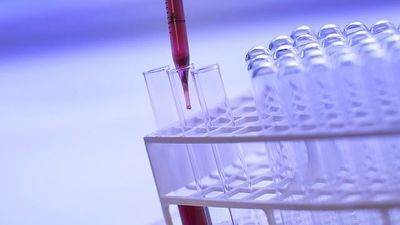 How Clinical Labs Can Adapt to Reimbursement Cuts