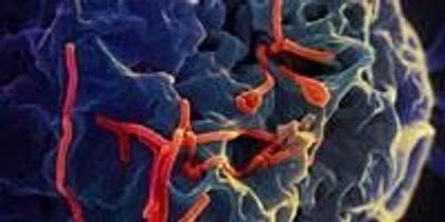 Scientists Get First Look at T Cell Responses in Ebola Virus Survivors