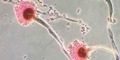 Chemists Characterize the Fatal Fungus Among Us