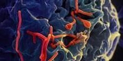 Proteins Found in Semen Increase the Spread of Ebola Virus Infection