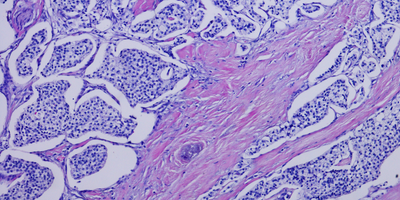 Pancreatic Cancer Tumor Classification Could Optimize Treatment Choices