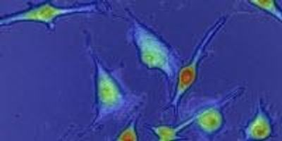 Scientists Create Technology That Measures Tumors' Drug Resistance up to 10 Times Faster