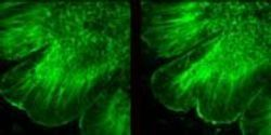 """""""Brain on a Chip"""" Reveals How the Brain Folds"""