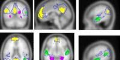 Brain Researchers Gain Greater Understanding of How We Generate Internal Experiences