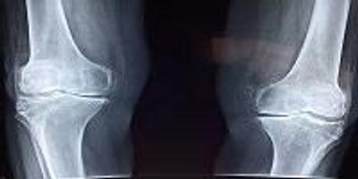 Kevlar-Based Artificial Cartilage Mimics the Magic of the Real Thing