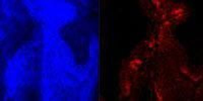 """Scientists Develop Experimental """"Nano-Chemo"""" Particle to Treat Bladder Cancer"""