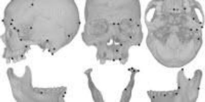 Farming, Cheese, Chewing Changed Human Skull Shape