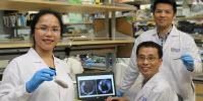 "Scientists Develop Novel Chemical ""Dye"" to Improve Liver Cancer Imaging"