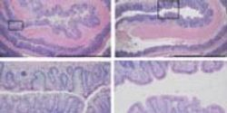 'Good' Bacteria Is Possible Solution for Unchecked Inflammation in Bowel Diseases