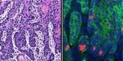 Targeting Cancer Stem Cells Improves Treatment Effectiveness and Prevents Metastasis