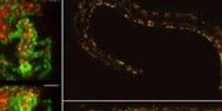 High-Speed Microscope Illuminates Biology at the Speed of Life