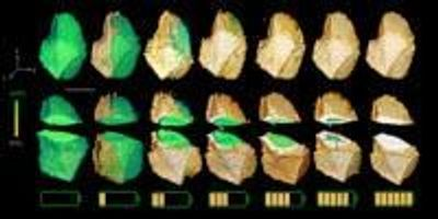 Slicing Through Materials with a New X-Ray Imaging Technique